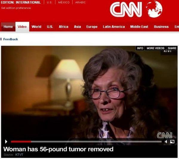 Médicos retiram tumor de 25 kg da barriga de americana de 75 anos