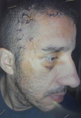 Militar é acusado de tentar matar colega com golpes de cassetete