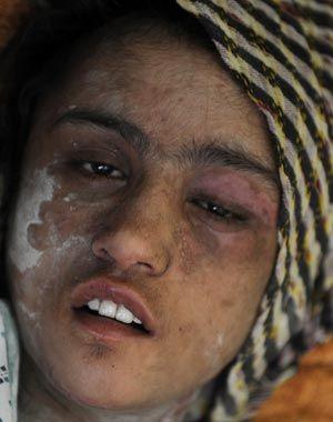 Presos os sogros que queimaram e tiraram as unhas  de jovem afegã
