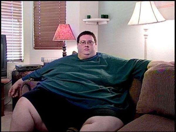 Americano que perdeu 181 kg tem recaída e fica obeso de novo; veja fotos do antes e depois!