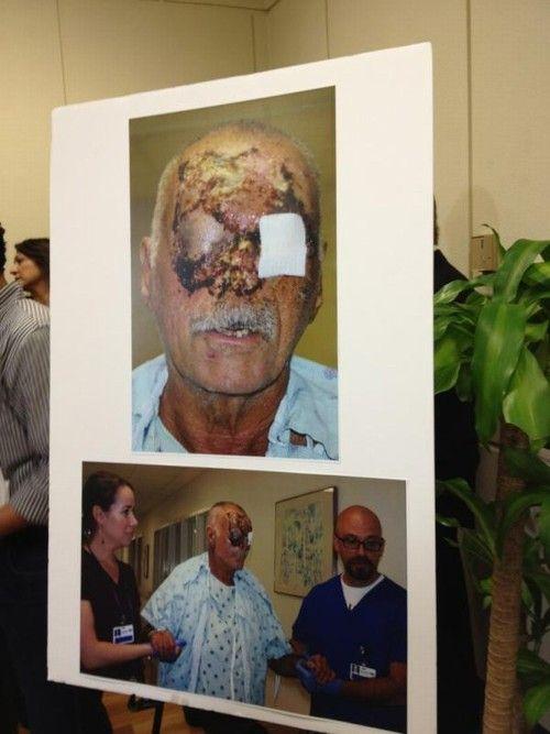 Mendigo de 65 anos atacado por canibal de Miami passa por 3 cirurgias, mas está cego