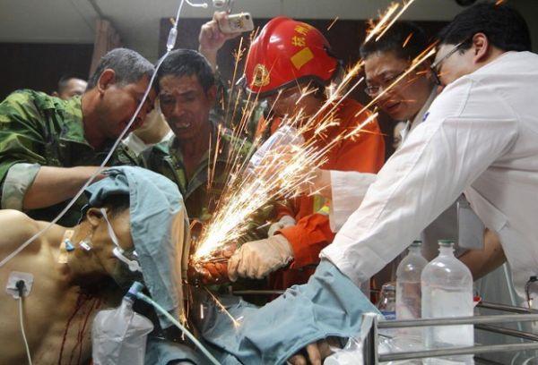 Operário chinês se recupera após ser empalado por sete varas de metal