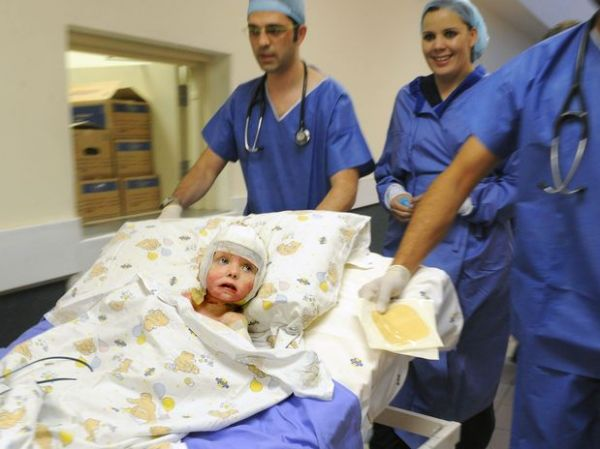 Menina de 3 anos recebe implante da própria pele clonada
