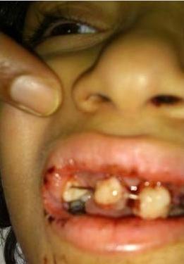 Menina saudita se interna para remover amígdalas e fica sem dentes