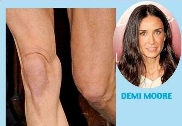 Fotos: jornal foca só nos joelhos das celebridades e lista os mais bizarros