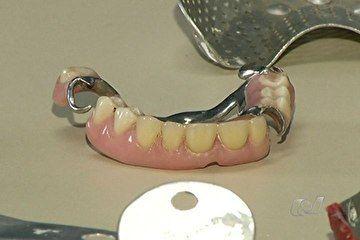 Polícia prende 4 dentistas falsos que atuavam sem nunca ter estudado