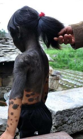 Chinesa de seis anos tem corpo coberto por pele preta e não consegue fazer amigos