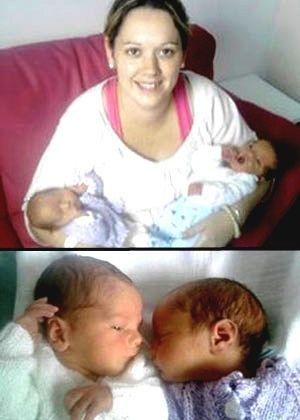Mulher de 28 anos dá à luz gêmeos em dois países diferentes em menos de duas horas