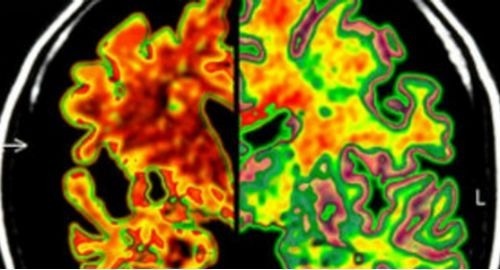 Cientistas detectam mal de Alzheimer antes dos sintomas aparecerem
