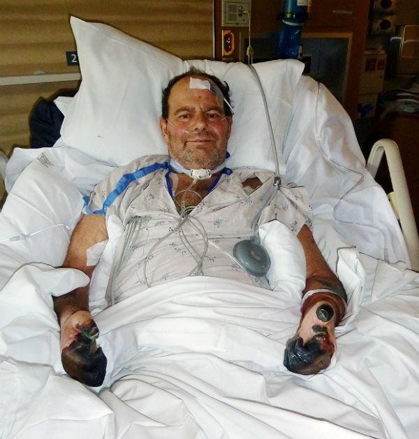 Homem contrai versão da peste negra e perde parte dos dedos