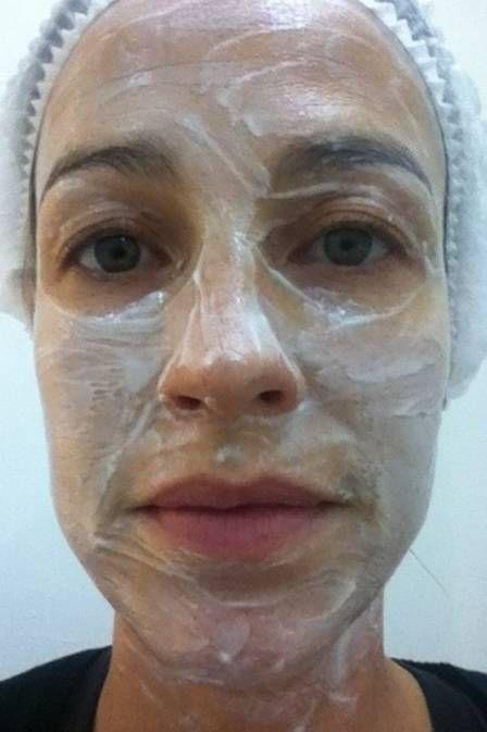 Luana Piovani mostra o rosto com creme antes de laser para clarear a pele