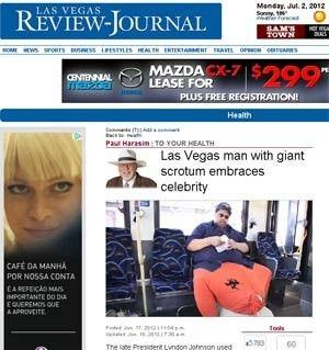 Americano com saco escrotal de 45kg rejeita fazer cirurgia gratuita