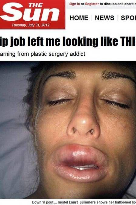 Modelo viciada em cirurgias plásticas fica com lábio deformado
