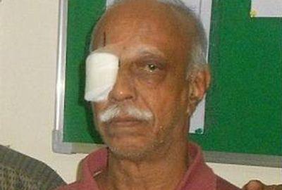 Médicos retiram verme com mais de 12 centímetros de olho de indiano