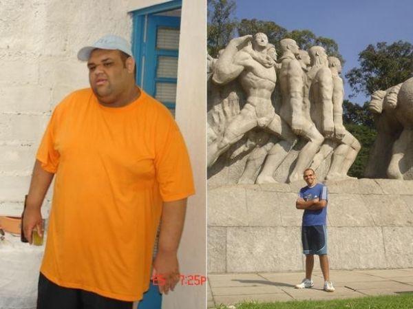 Após perder 106 kg, jovem tem melhora na saúde e na vida social
