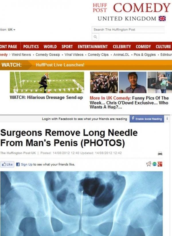 Médicos retiram agulha do pênis de homem na China