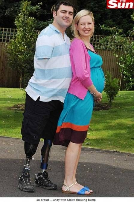 Homem que perdeu pernas e braço em guerra no Afeganistão espera o primeiro filho