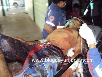 Jovem fica em estado grave após ser esfaqueado em Parnaíba