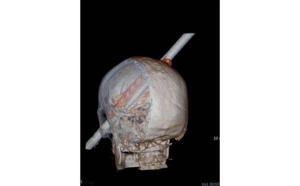 Operário tem a cabeça perfurada por vergalhão e sobrevive