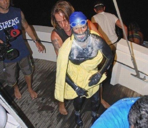 Nadadora desiste de travessia após ser gravemente ferida por águas-vivas