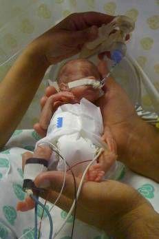 Terceiro menor bebê do  país vai de 440g a 2,7kg  em 4 meses: