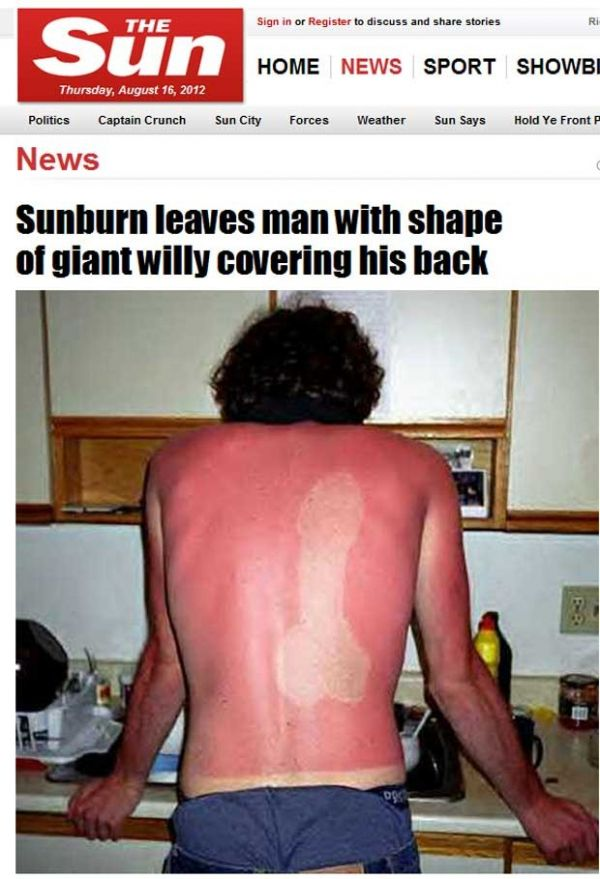 Homem toma sol e fica com queimadura em forma de pênis