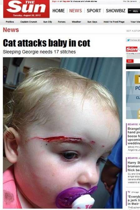 Criança é atacada por gato no berço e leva 17 pontos no rosto