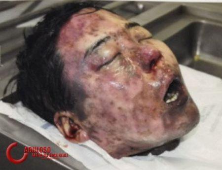 Advogado pedirá segredo de Justiça após fotos de Marcos Matsunaga vazarem na web