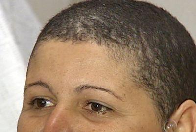 Mulher fica careca após usar um produto  de R$ 6,20 para alisar cabelo