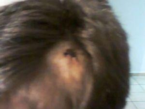 Menina de 11 anos salva irmão de ataque de pit bull