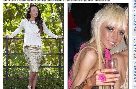 Anoréxica batalha pela saúde depois ter quase morrido