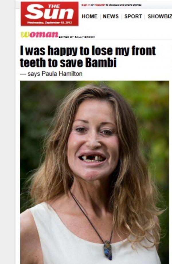 Ex-top perde dentes em acidente para evitar morte de animais