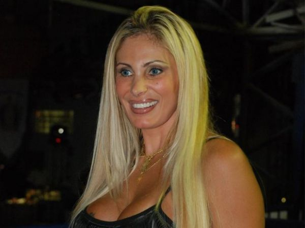 Angela Bismarchi recorre a células-tronco para evitar plásticas