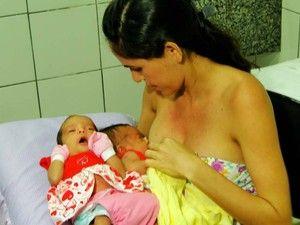 Gêmeas siamesas nascem unidas pelo cóccix no Rio Grande do Norte