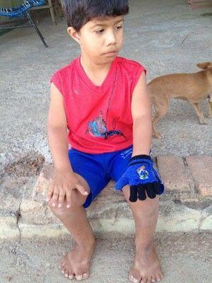 Menino com 26 dedos sonha com cirurgia para poder jogar bola
