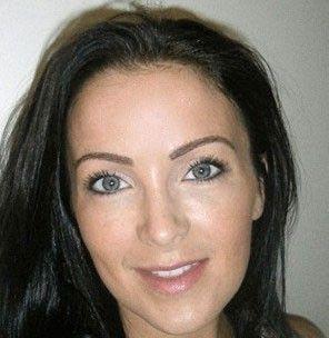 Mulher gasta R$ 7,1 mil para fazer um implante de sobrancelha