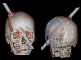 Neurocirurgião que salvou operário atingido por vergalhão vira