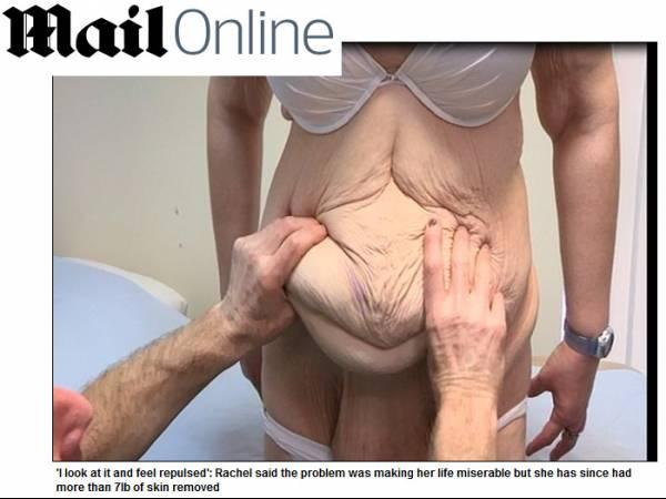 Após perder 107 kg, britânica retira 3 kg de excesso de pele