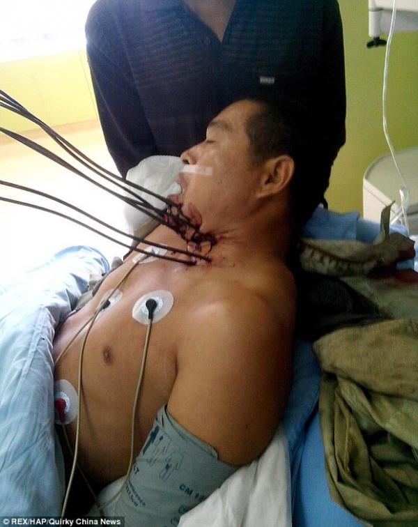 Homem sobrevive após perfurar pescoço com sete barras de metal