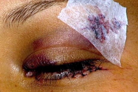 Policial corta olho de ex com estilete após descobrir traição