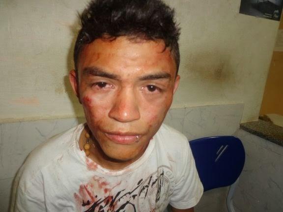 Adolescente é esfaqueado em tentativa de assalto no litoral