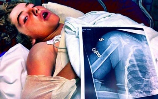 Prodígio de 13 anos tenta completar looping de Tony Hawk e fratura ombro