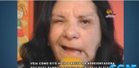 Cirurgia plástica desfigura rosto de apresentadora  da Rede TV