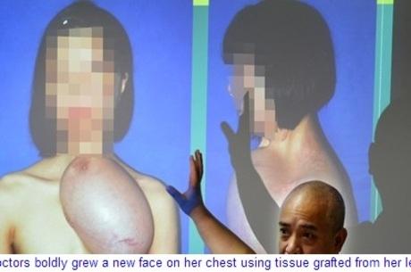 Jovem recebe transplante de face que havia sido implantada em seu peito