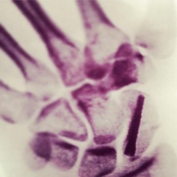 Após quebrar a mão, Nanda Costa coloca parafuso e mostra raio-X