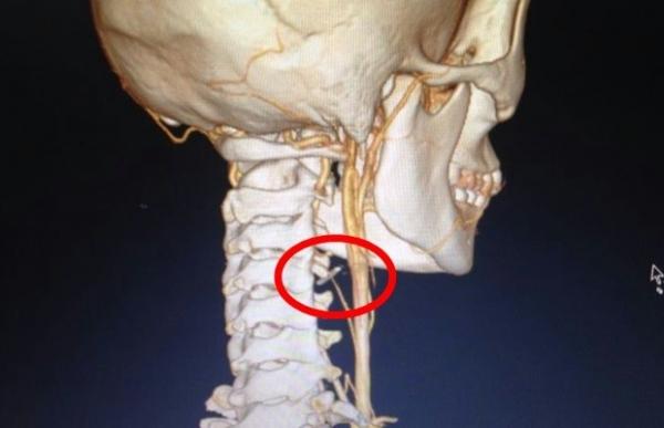 Adolescente passa por cirurgia no pescoço após engolir agulha em Goiás