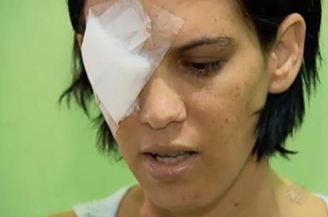 Mulher que teve olhos perfurados pelo ex-marido luta para recuperar a visão
