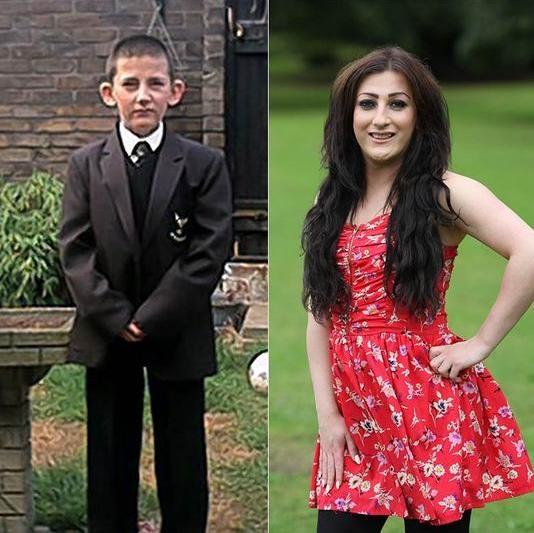 Após sofrer bullying na escola, menino muda de sexo e vira modelo na Inglaterra