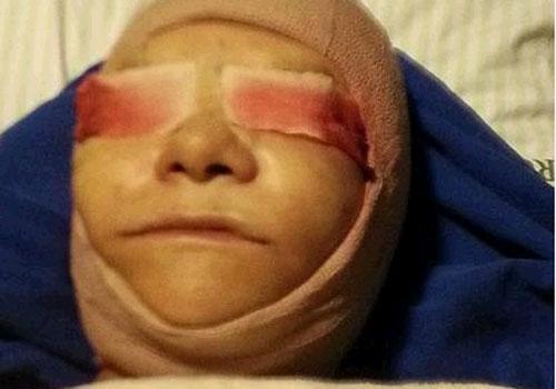 Após ficar com rosto deformado em cirurgia plástica, apresentadora de TV vive só de pão e água