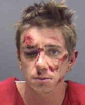 Ladrão cai de moto, espalha itens roubados em rodovia e vai preso